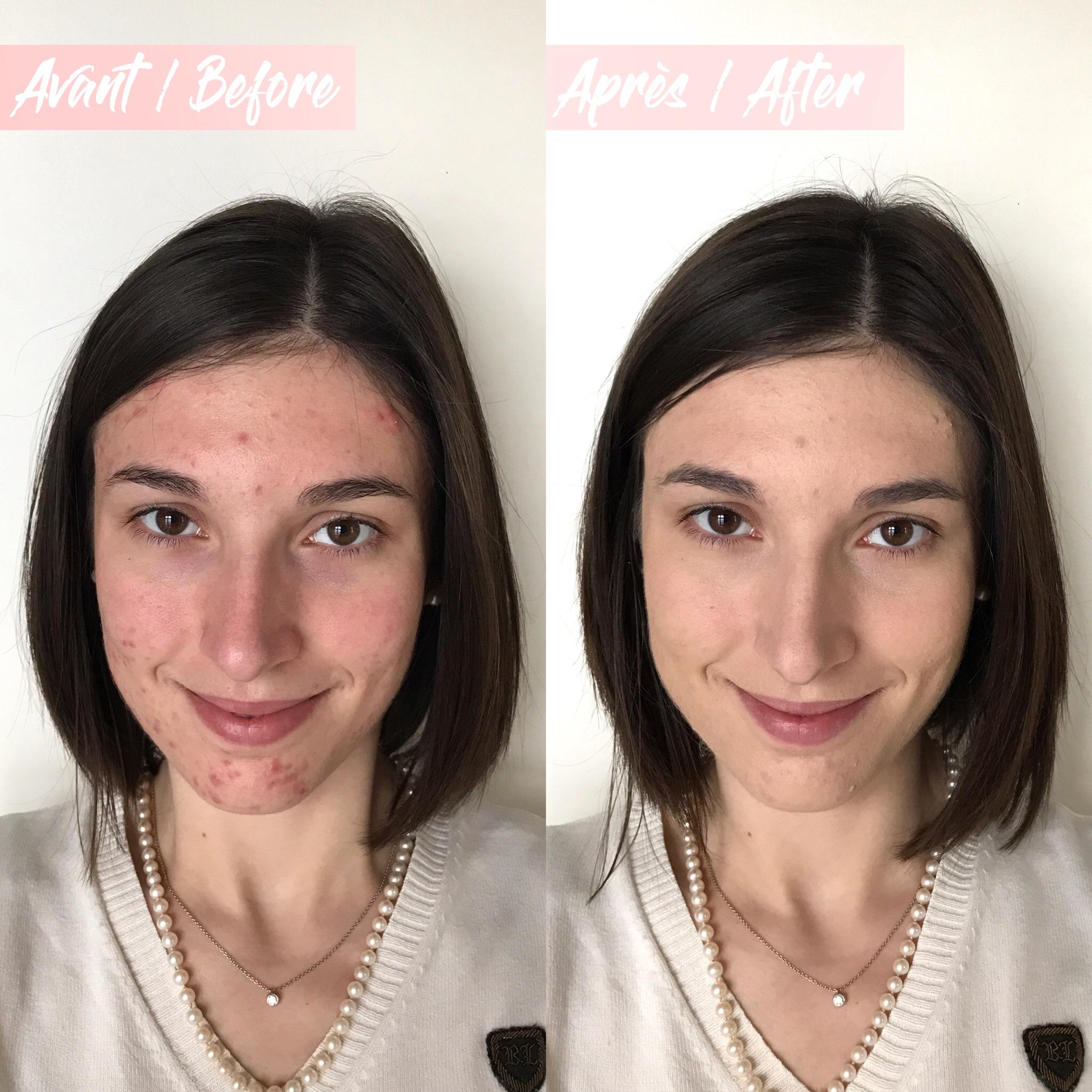 Avant/Après n°2 fond de teint Gressa Skin Minimalist Foundation