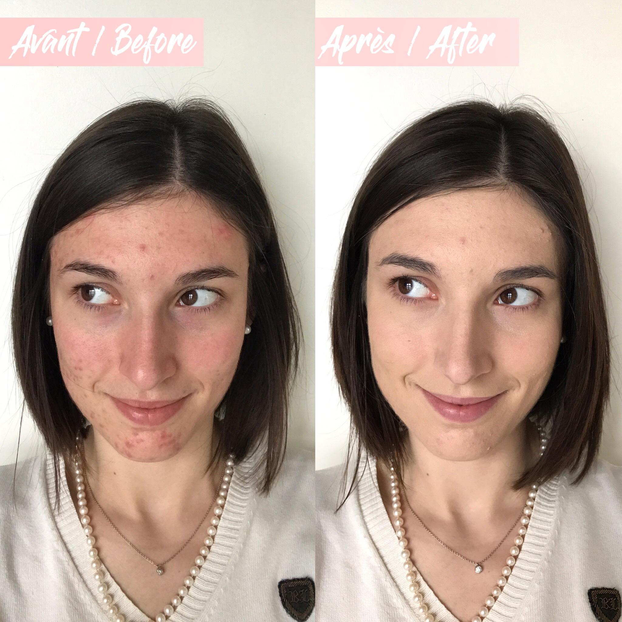 Avant/Après n°3 fond de teint Gressa Skin Minimalist Foundation