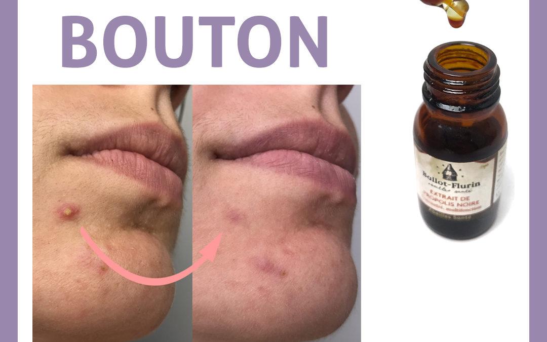 La propolis noire contre les boutons d'acné : la preuve en image !