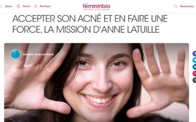 ACCEPTER SON ACNÉ ET EN FAIRE UNE FORCE, LA MISSION D'ANNE LATUILLE