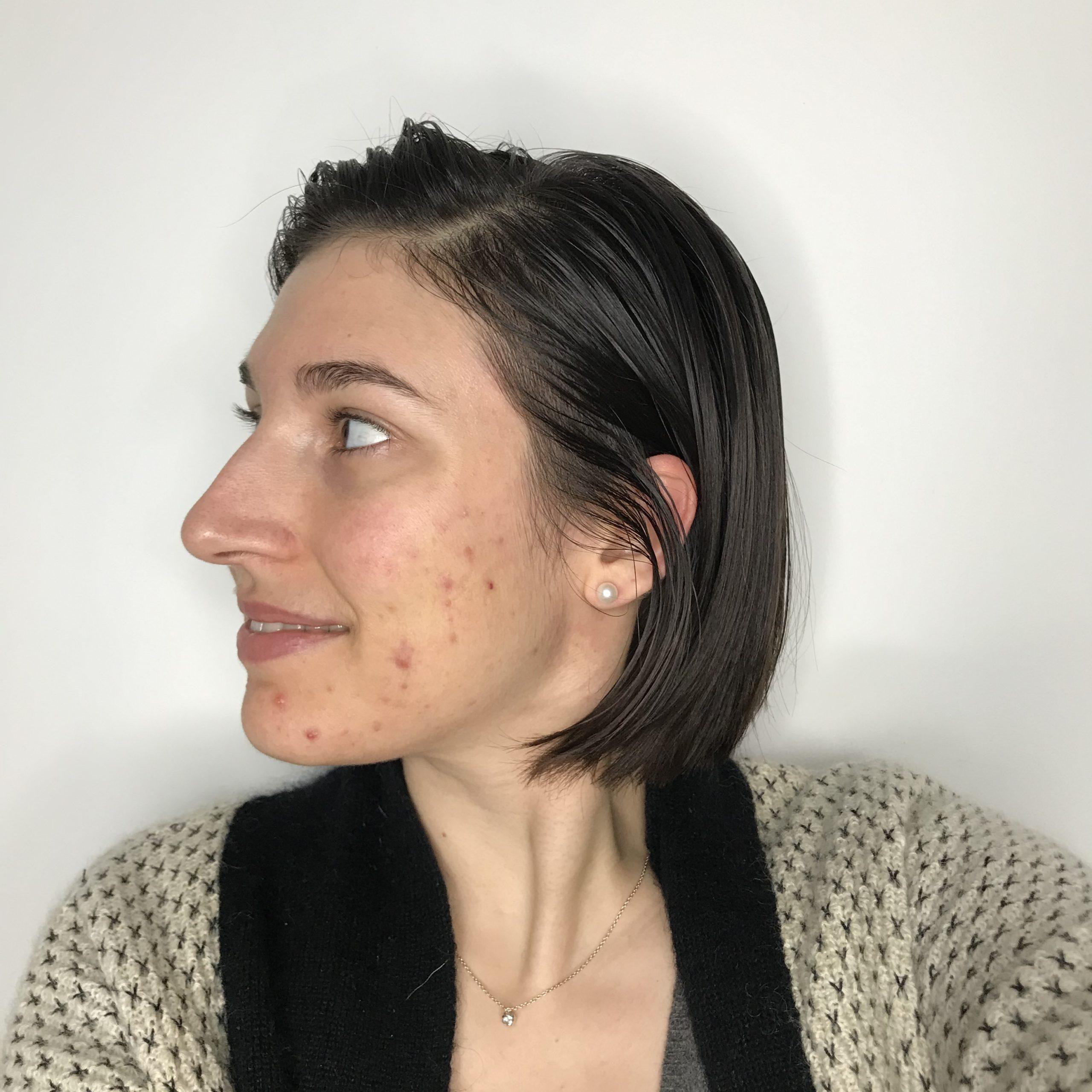 Après 5 semaines de face