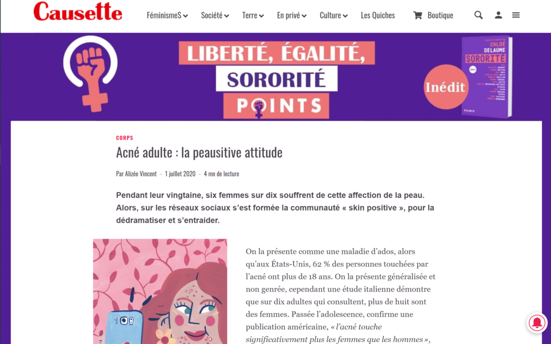 Article Causette : Acné Adulte, la peausitive attitude